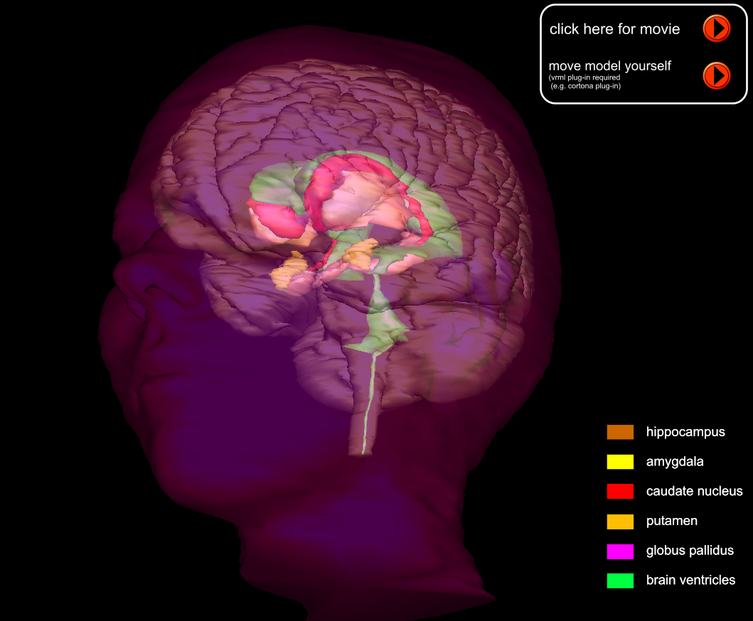 3D_MRI_rendering_head_plus_complete_brain_labels_off