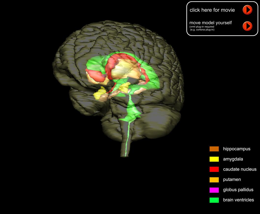 brain mri scan 3d - photo #20