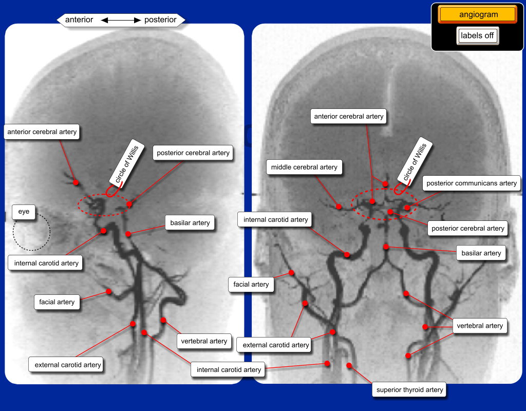 H aktPathway in addition Internal Capsule 5904262 together with Pulp 15597098 together with 010 also Posterior Circulation Stroke Syndromes. on blood supply to the in video